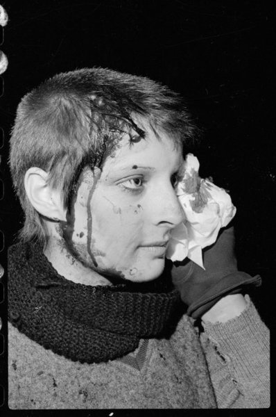 Karen Brough Injured At An Anti Springbok Rugby Tour Demonstration In Wellington On The 29th Of July 1981 Photo Ian Mackley Courtesy National Library