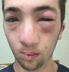 Andrew Seely's face became swollen after peanut butter was allegedly rubbed on his face by another student.