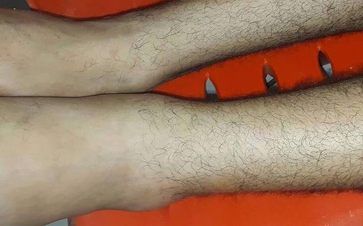 The swollen left ankle of Azzam el Sheikh.