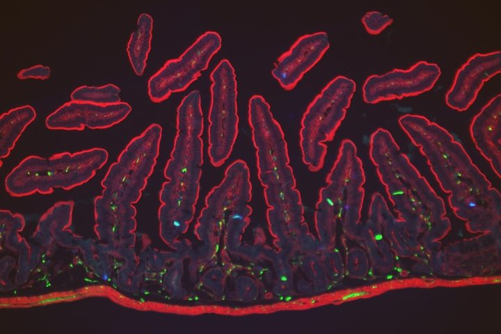Enterochromaffin cells (blue) in finger-like projections within the gut villi (outlined in red) detect noxious chemicals.