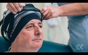 Hair saving treatment for cancer sufferers trialled in Nelson