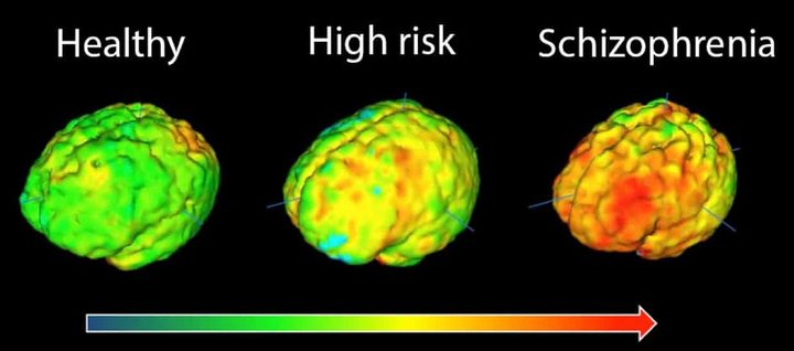 Brain images showing elevation in microglial activity in orange/red. The highest levels in schizophrenia are in the frontal cortex and the temporal cortex.
