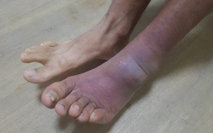 The ailing foot of a Manus refugee.