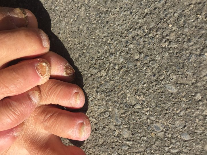 A close up of Bruce's toes with blisters and damaged toenails.