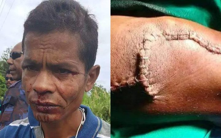 The allegedly twice assaulted refugee from Bangladesh