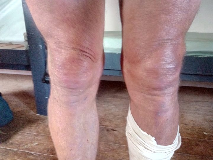 An image of Bruce's swollen left knee.