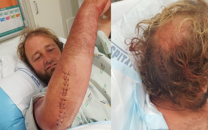 The injuries suffered by the diver run over by an Auckland boatie.
