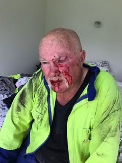 Avocado grower Robin Hanvey after he was beaten up by two men.