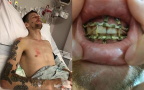 Liam Thompson's jaw was broken when he was flung over the handlebars of a scooter when it braked.