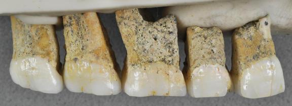 The right upper teeth of the individual CCH6 of the newly discovered species Homo luzonensis. From left are two premolars and 3 molars.