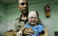 A child wounded after the UN building was shelled is treated in hospital.
