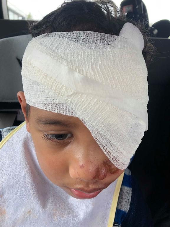 Masua Tusa's mum Mully says her son's injuries looked more like burns.