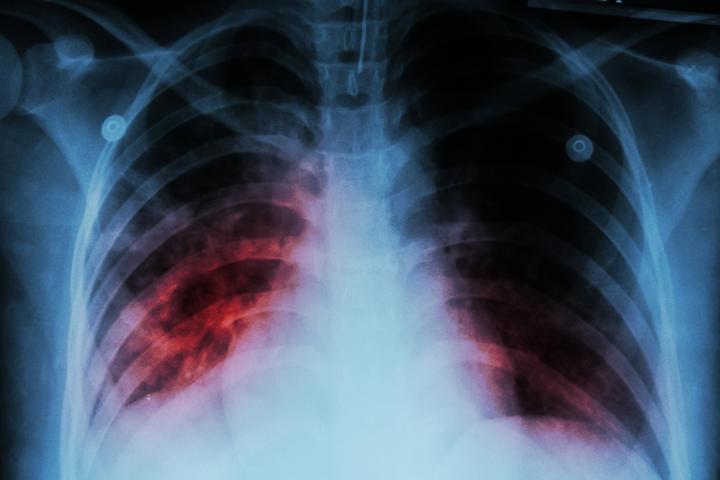 Australia targets Pacific TB