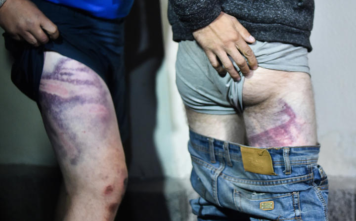 People detained during recent rallies of opposition supporters, who accuse strongman Alexander Lukashenko of falsifying the polls in the presidential election, show their traces of beatings as they leave the Okrestina prison early morning in Minsk on August 14, 2020.