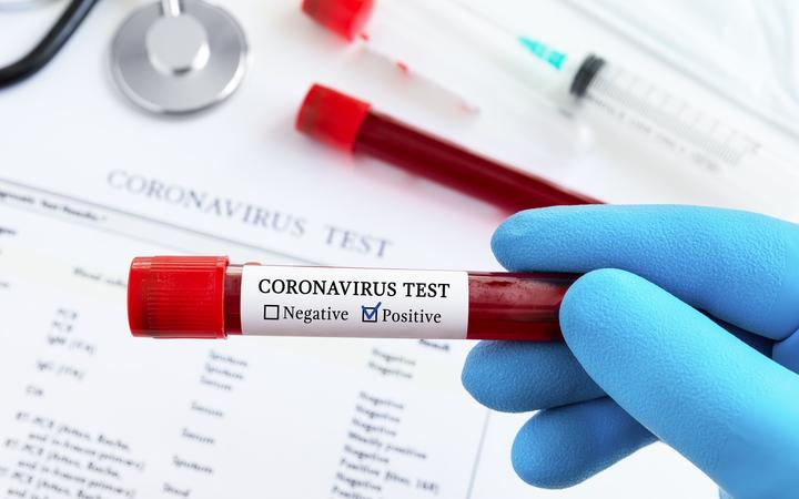 Man charged with faking positive Covid-19 test