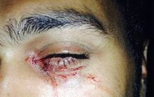 "The Refugee Action Coalition says an Iranian refugee, ""Mehrzad"", was attacked and hit in the face with a rock on Nauru."