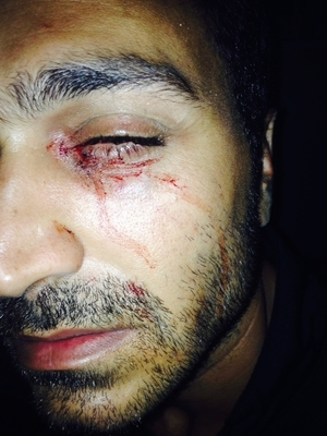 The Refugee Action Coalition says Iranian refugee Mehrzad has lost most of his vision after being attacked on Nauru.