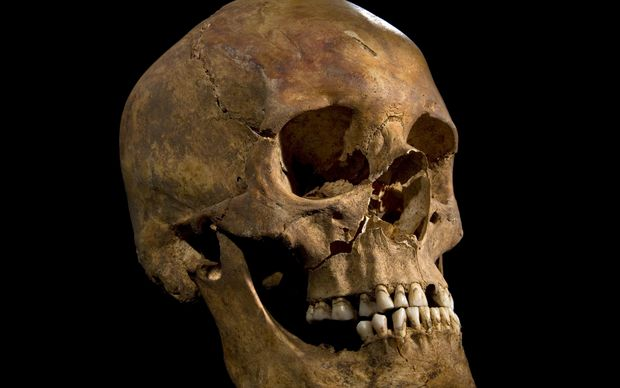 The skull of Richard III who died at the Battle of Bosworth - the last English monarch to die in battle.