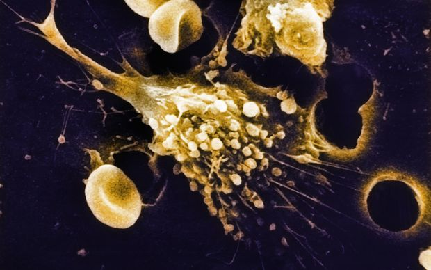 A scanning electron microscope (SEM) image of a cancer cell.