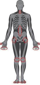 Skeleton showing how osteoarthritis can occur in a number of joints. Mobility can be impaired when it occurs in the hips, knees and ankles.