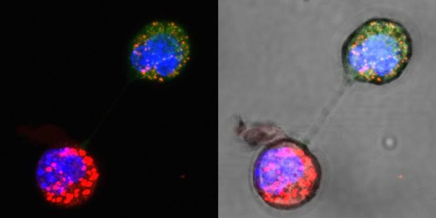 These images show the transfer of mitochondria, via a nanotube, between breast cancer cells in a mouse.