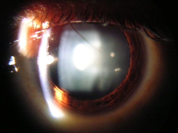 Cataract Surgery Helps Stem Cells Restore Vision