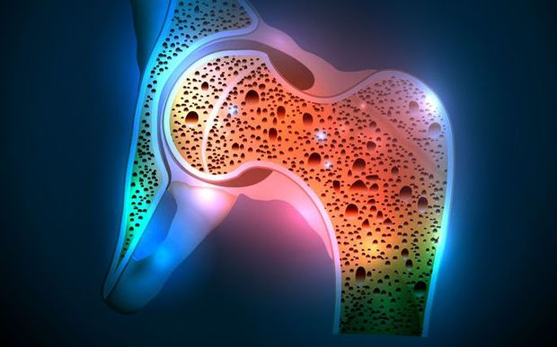 Treating osteoporosis with vitamin D and calcium could do more harm than good new research says.