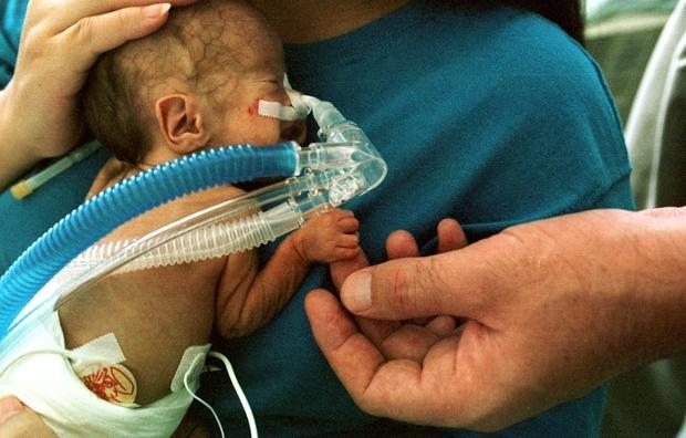 A premature infant.