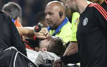 Luke Shaw receives oxygen before being carried off the field at Eindhoven