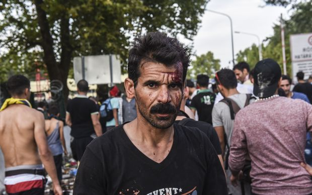 An injured migrant walks away during clashes with Hungarian anti-riot police.