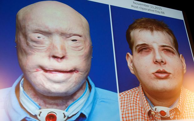 Patrick Hardison before and after his face transplant.