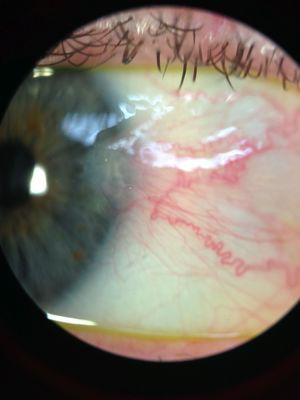 UV rays also cause pterygium, a growth on the surface of the eye