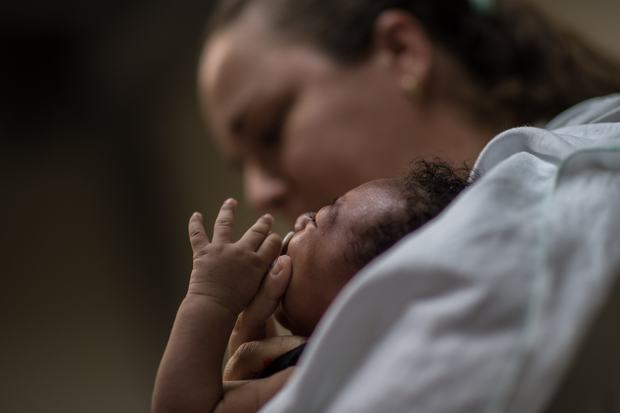 A physiotherapist in Brazil holds a baby suffering from microcephalia.