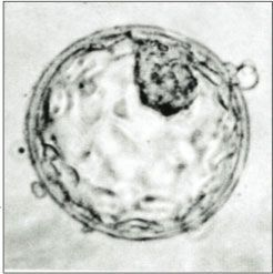 By about seven days after fertilisation, a human embryo reaches the blastocyst stage.