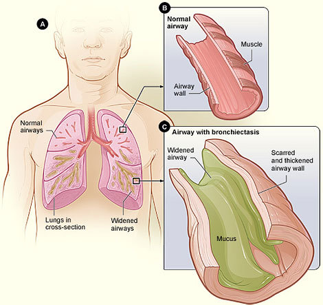 A diagram shows an airway with bronchiectasis.