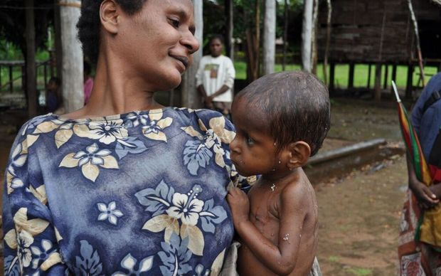 A mother and her malnourished child, Bimadbn Village, Morehead, Western Province, Papua New Guinea.
