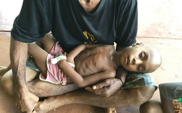 A father holds his malnourished son in Western Province, Papua New Guinea.