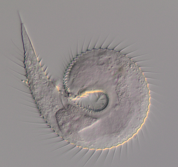 Tiny worm curved into a ball with spines around the otuside