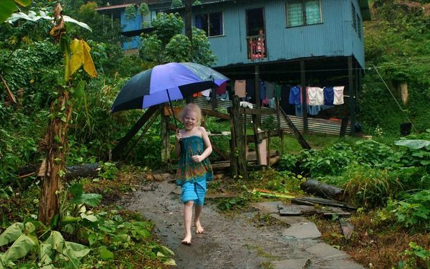 """Fiji urged to help people with albinism """"out of the shadows"""""""