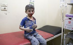 A Syrian boy awaits treatment at a make-shift hospital following air strikes on rebel-held eastern areas of Aleppo.