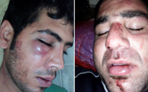 Photos of injuries suffered by two refugees in an attack on New Years Eve, 2016.