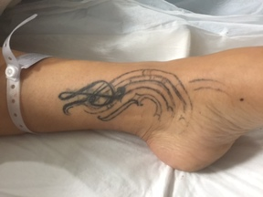 A photo of the critically injured woman's tattoo.