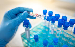 Medical scientist hand with blue sterile rubber gloves holding COVID-19 test tube in hospital laboratory. Male doctor or physician getting result of Coronavirus case.