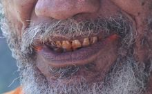 Betelnut-stained mouth, Papua New Guinea.