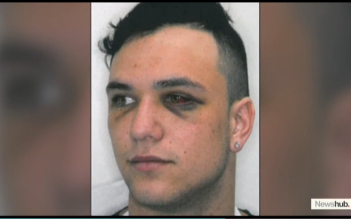 Newshub airs a Police photo of injuries sustained by one of Losi Filipo's four victims.