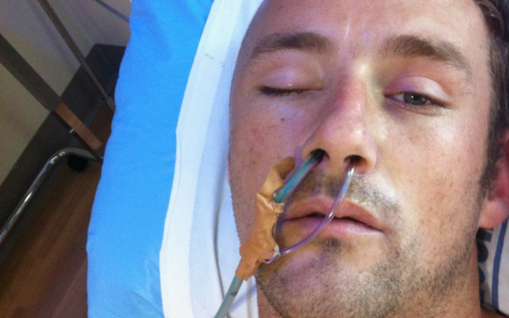 Benjamin Lightbody in hospital after the attack in Mt Eden prison in 2013. Photo/ Twitter