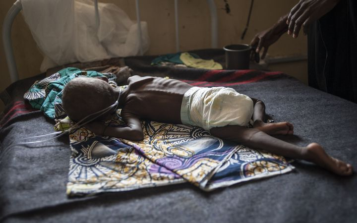 A young child suffering from severe malnutrition lies on a bed in the ICU ward at the In-Patient Therapeutic Feeding Centre in the Gwangwe district of Maiduguri, the capital of Borno State, northeastern Nigeria.