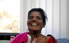 A woman under the care of Burns Violence Survivors in Nepal.