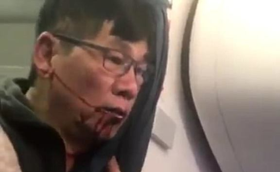 The man is pictured bleeding from the mouth after he was dragged off the overbooked United Airlines flight.