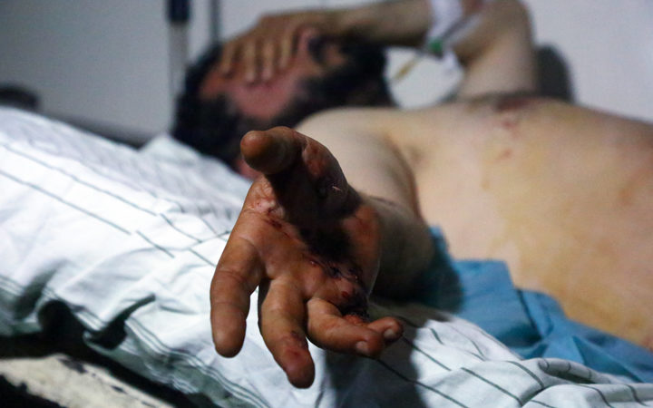 A man injured in the attack lies on a hospital bed in Hassakeh